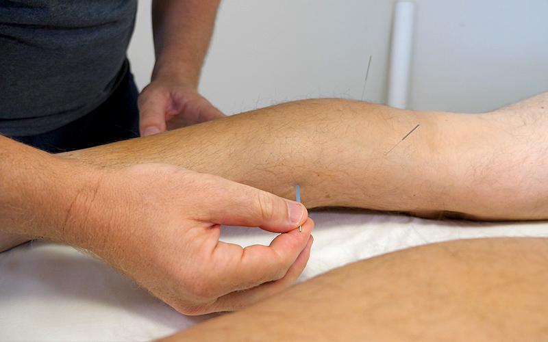 Acupuncture Treatment - Aim Sports Medicine